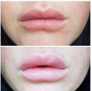 Resultatet af læbeforstørrelse